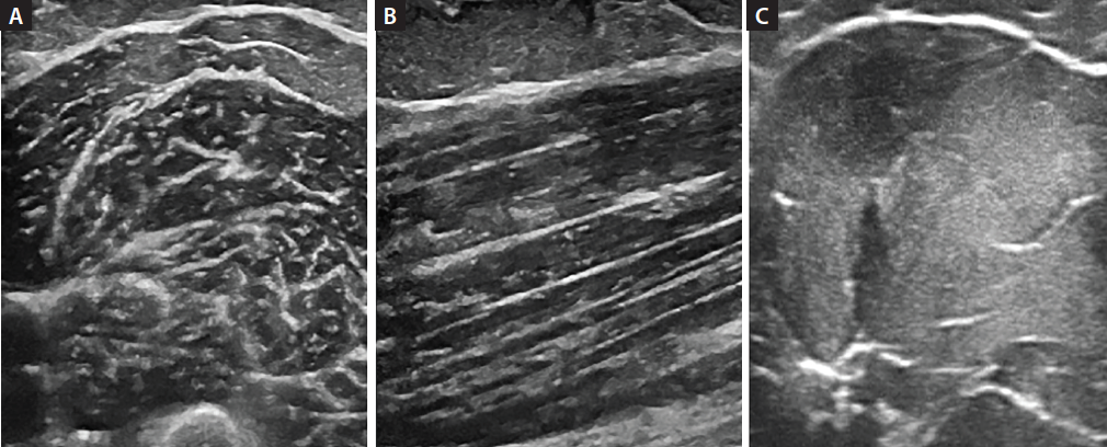 <p>Figure 1. Transverse (A) and longitudinal (B) ultrasound of normal biceps muscle. Transverse ultrasound of myopathic biceps muscle (homogeneous, hyperechoic) in acid maltase deficiency (Pompe's disease) (C).</p>