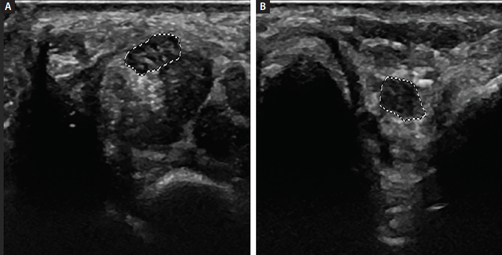 <p>Figure 2: Transverse view of normal median nerve at the distal wrist crease (A) and in the ulnar groove (B).</p>