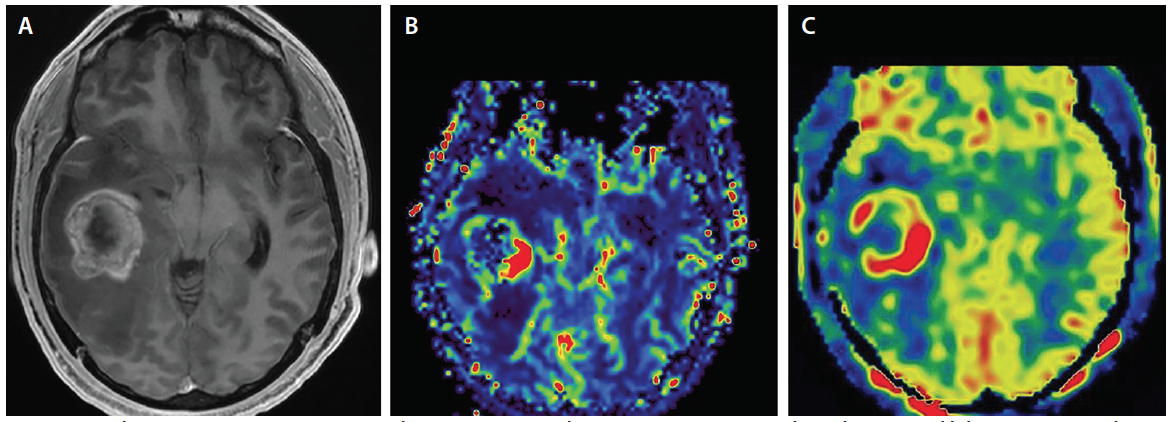 <p>Figure 1. Axial post-contrast T1 sequence (A) demonstrates an enhancing necrotic mass in the right temporal lobe consistent with glioblastoma multiforme (GBM). Corresponding relative cerebral blood volume (rCBV) map (B) demonstrates elevation in CBV supporting the diagnosis of a high-grade glioma. An ASL map (C) demonstrates elevated cerebral blood flow (CBF) in the GBM.</p>