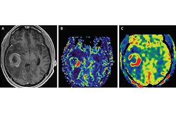Brain Tumor Imaging image
