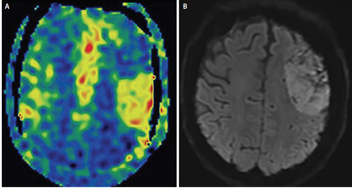 <p>Figure 2. ASL map (A) demonstrates elevated cerebral blood flow (CBF) in a left parietal lobe meningioma, which is a hypervascular tumor. With an axial diffusion sequence (B), the meningioma appears as a homogenous restricted diffusion reflecting relative uniform hypercellularity that is classic for meningiomas.</p>