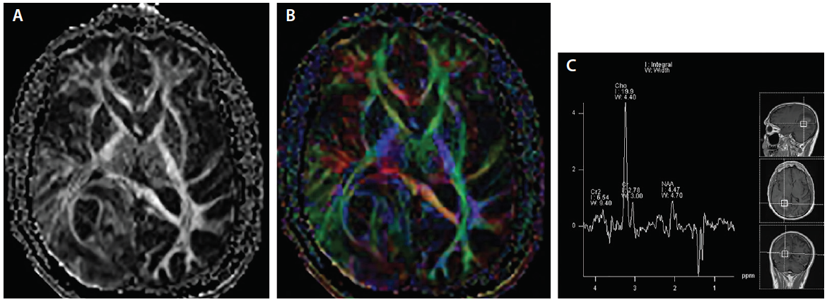 <p>Figure 3. Axial gray-scale DTI (A) and axial color encoded DTI (B) maps demonstrates a high-grade glioma in the right occipital lobe displacing and invading the right optic tract. With single voxel spectroscopy (C) significant reversal of Hunter's angle consistent with the high-grade glioma in the right occipital lobe is seen.</p>