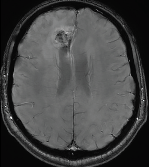 <p>Figure 4. Axial susceptibility-weighted imaging (SWI) sequence demonstrates intratumoral susceptibility reflecting dysplastic vessels in a grade 4 glioma along the right cingulate gyrus.</p>
