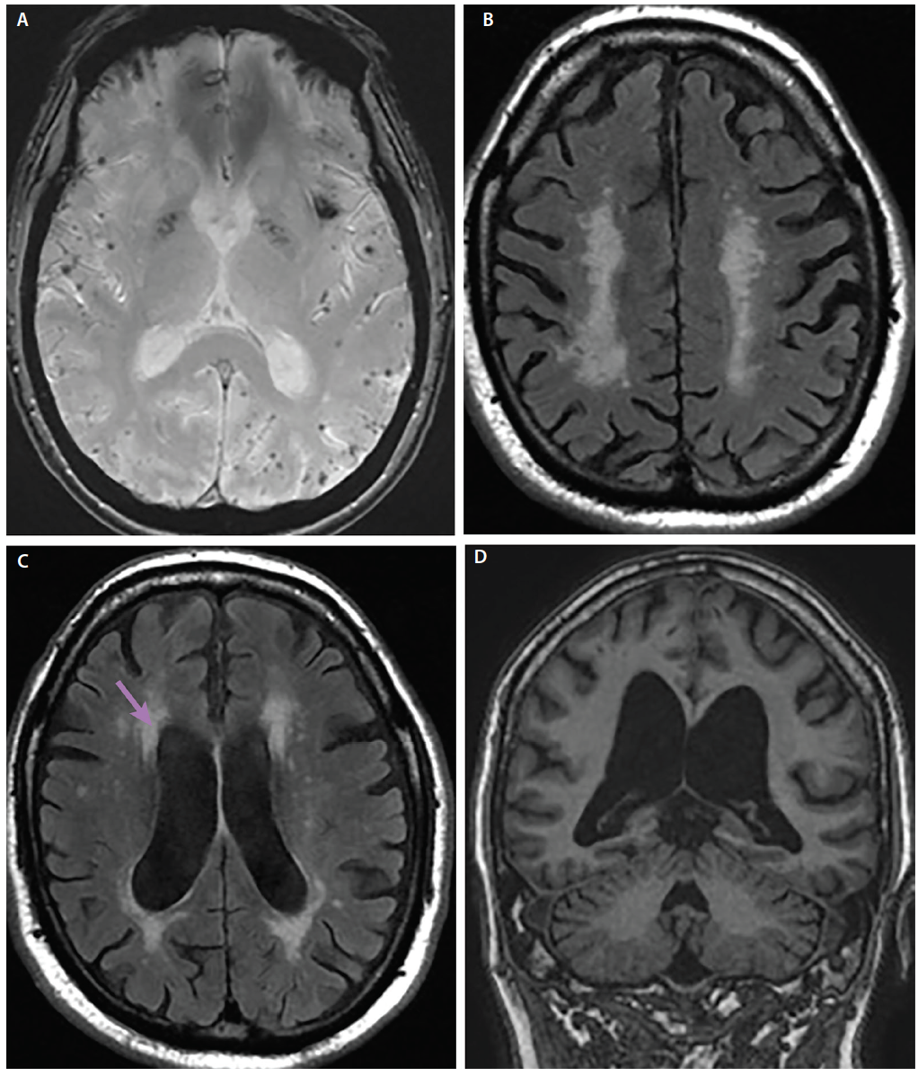 <p>Figure 2. Amyloid angiopathy is seen with gradient echo susceptibility artifact from microhemorrhages, usually at gray-white matter junction (A). In vascular dementia and chronic microangiopathic disease is seen as confluent periventricular white matter disease (B, C). Crowding at the vertex and ventricles that are enlarged out of proportion to volume loss (D) may reflect normal-pressure hydrocephalus (NPH), although NPH is still a clinical diagnosis.</p>