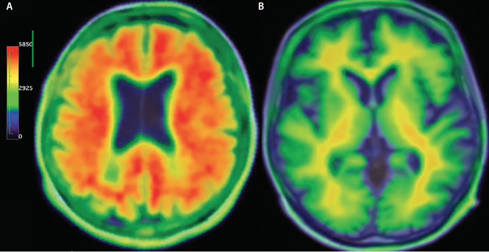 <p>Figure 3. Amyloid-positron emission tomography (PET) results return a result are either positive (A) or negative (B) for the presence of amyloid.</p>