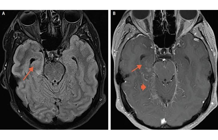 Case Report: Seizure, Fever, Hallucinations, & Vision Loss image