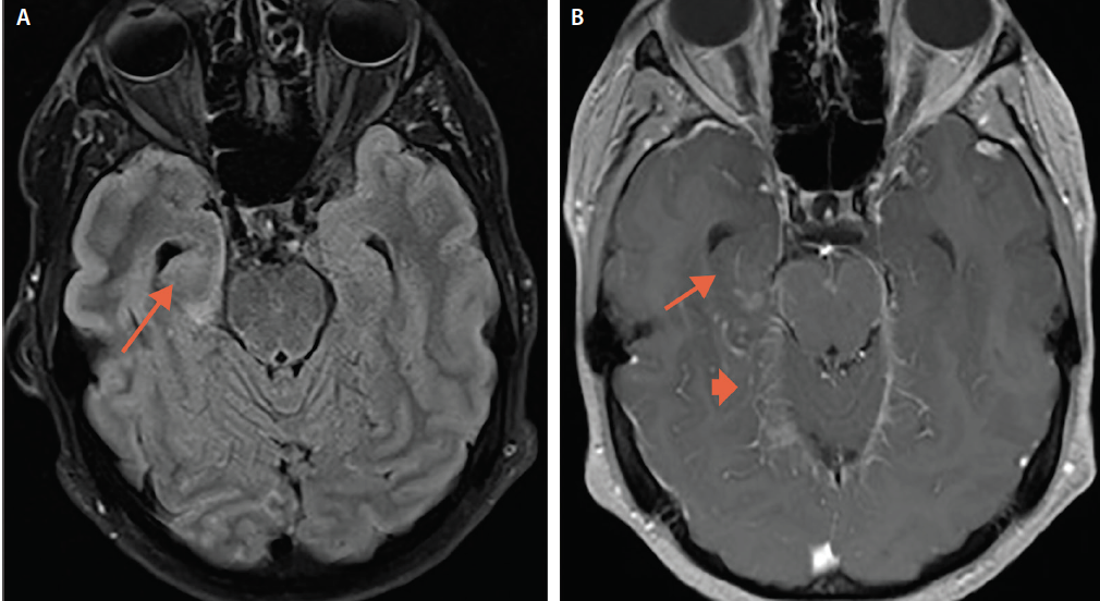 <p>Figure 1. Brain MRI from Mr. L's initial hospitalization with increased signal intensity in the right mesial temporal lobe (A), and enhancement of the temporal lesion (B) (small arrow) with leptomeningeal enhancement (large arrow).</p>