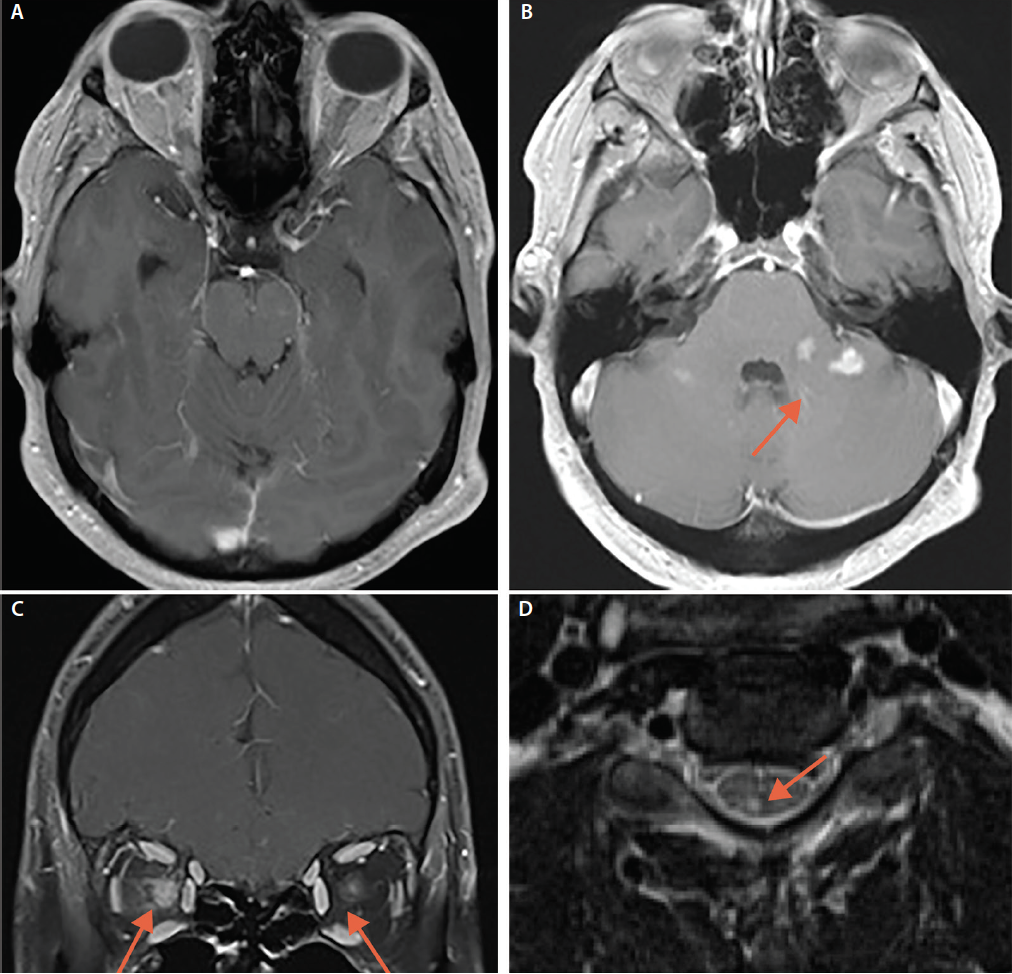 <p>Figure 2. Brain MRI from Mr. L's second hospitalization demonstrates resolution of the previously visualized right temporal lesion and leptomeningeal enhancement (A), with new enhancing lesions both infra- (B) and supratentorially (C), bilateral optic neuritis with greater enhancement in the right optic nerve compared with the left (white arrows) (B), and an enhancing lesion in the spinal cord (D).</p>