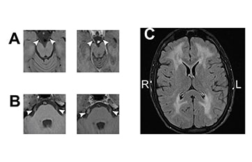 Case Reports: Mitochondrial Neurogastrointestinal Encephalopathy image