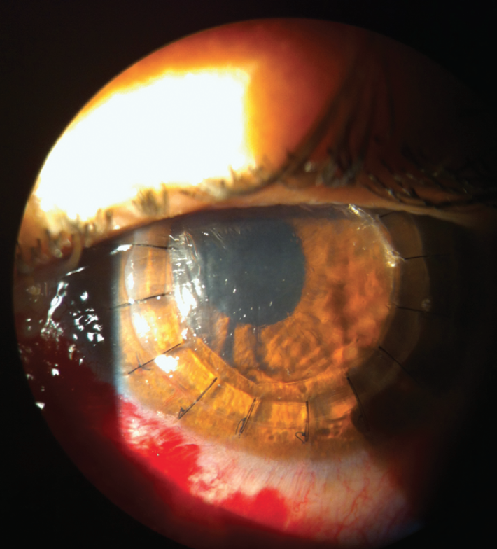 Figure 1. Postoperative photo of a DALK with reverse