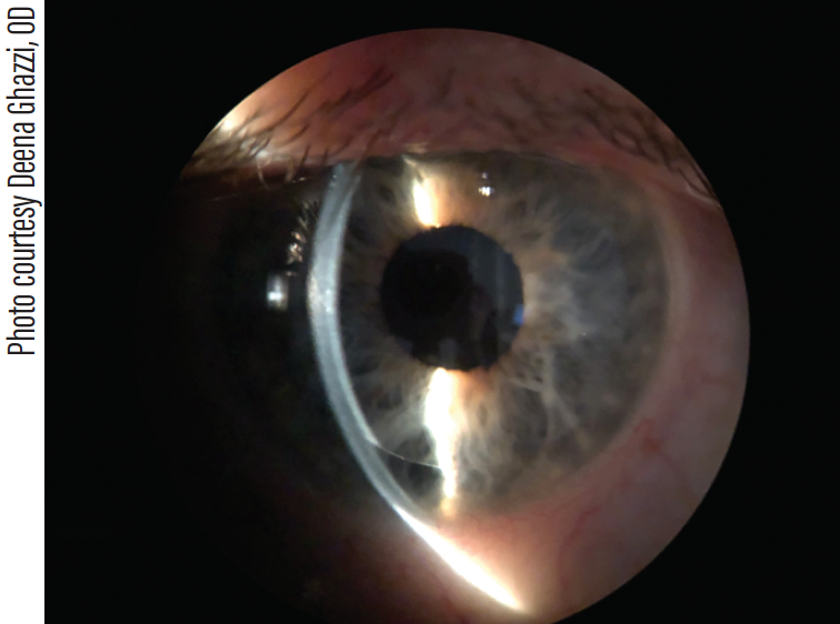Figure 2. DSEK imaged using optic section to illustrate