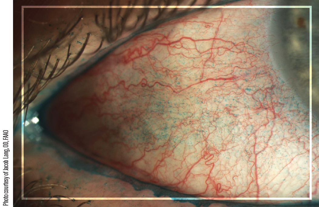 Figure 2. Lissamine green allows visualization of dead and devitalized cells on the ocular surface. Here, mild to moderate conjunctival staining is seen.