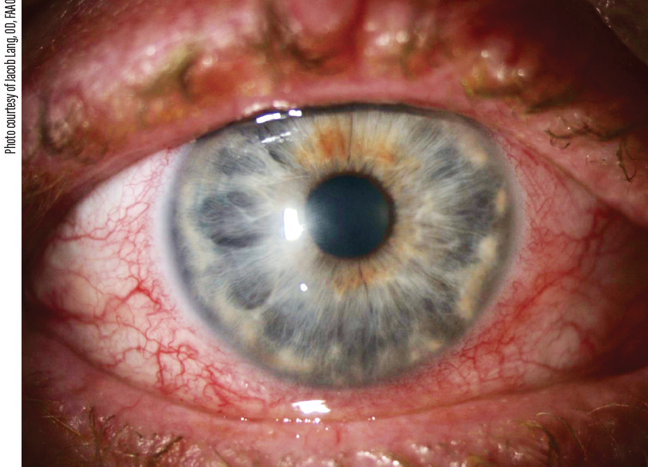 Figure. Typical appearance of an inflamed eye not treated with a topical antiinflammatory drug.