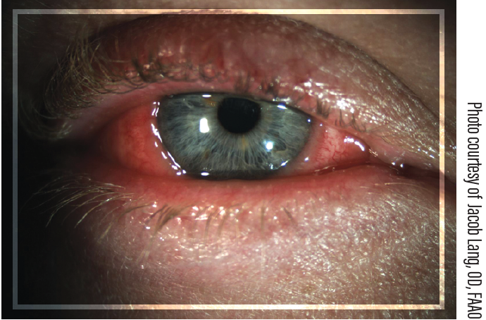 Figure. An eye showing signs typical of ocular allergy (ie, redness, tearing, conjunctival chemosis, and swollen eyelids) as noted on external examination.