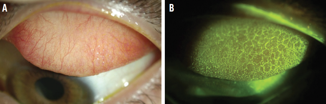 Figure 1. A 21-year-old male scleral lens wearer with history of allergic conjunctivitis. Slit-lamp photograph of the left upper tarsal conjunctiva upon lid eversion in diffuse white light (A) and wide-beam blue light with yellow filter (B). Note the evident higher degree of papillary roughness of the same eye upon instillation of sodium fluorescein.