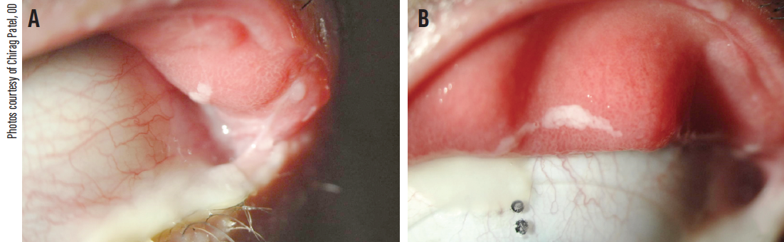 Figure 2. A 49-year-old man with history of presumed allergic conjunctivitis presented with signs of floppy eyelid syndrome, including easily evertible lids, mucoid discharge, and