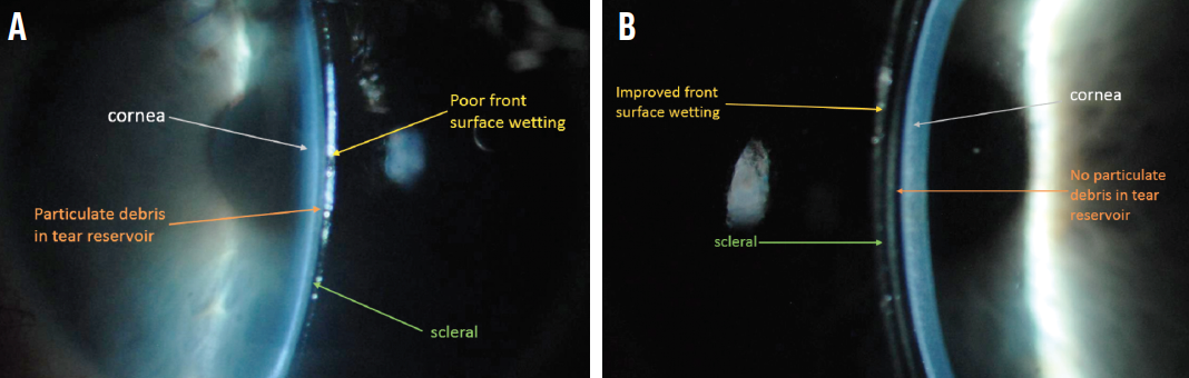 Figure 3. Slit-lamp narrow-beam white light photograph of a scleral lens after 4 hours of wear on patient's left eye with reports of midday fogging and intermittent blurred vision