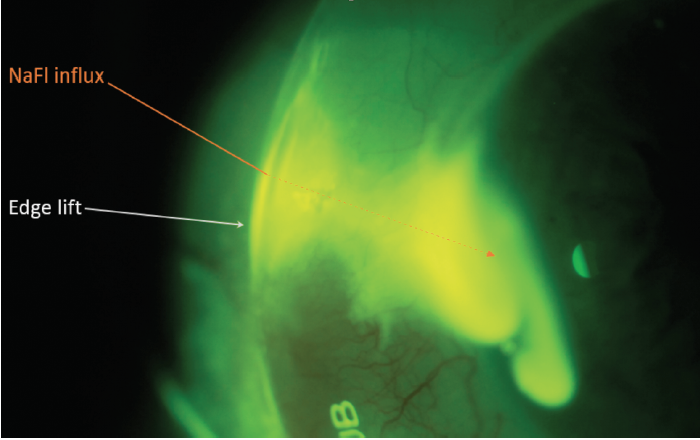 Figure 4. Wide-beam blue light with yellow filter slit-lamp photograph demonstrating rapid influx of debris due to edge