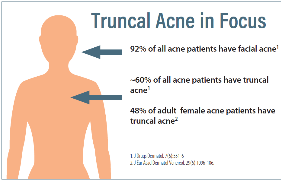 Efficacy And Safety Of Newly Approved Oral Sarecycline For Acne Practical Dermatology