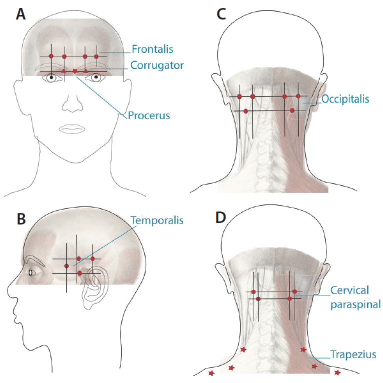 Figure 1. These muscle groups correlate with the peripheral innervation of the trigeminal, occipital, and cervical sensory nerves—all implicated in migraine pain. Doses below 155 units did not provide statistically significant benefit. Some evidence supports use of higher doses of an additional 5 units into each temporalis and occipitalis and another 10 units on each side of the trapezius in what is termed a <em>follow-the-pain pattern</em>.
