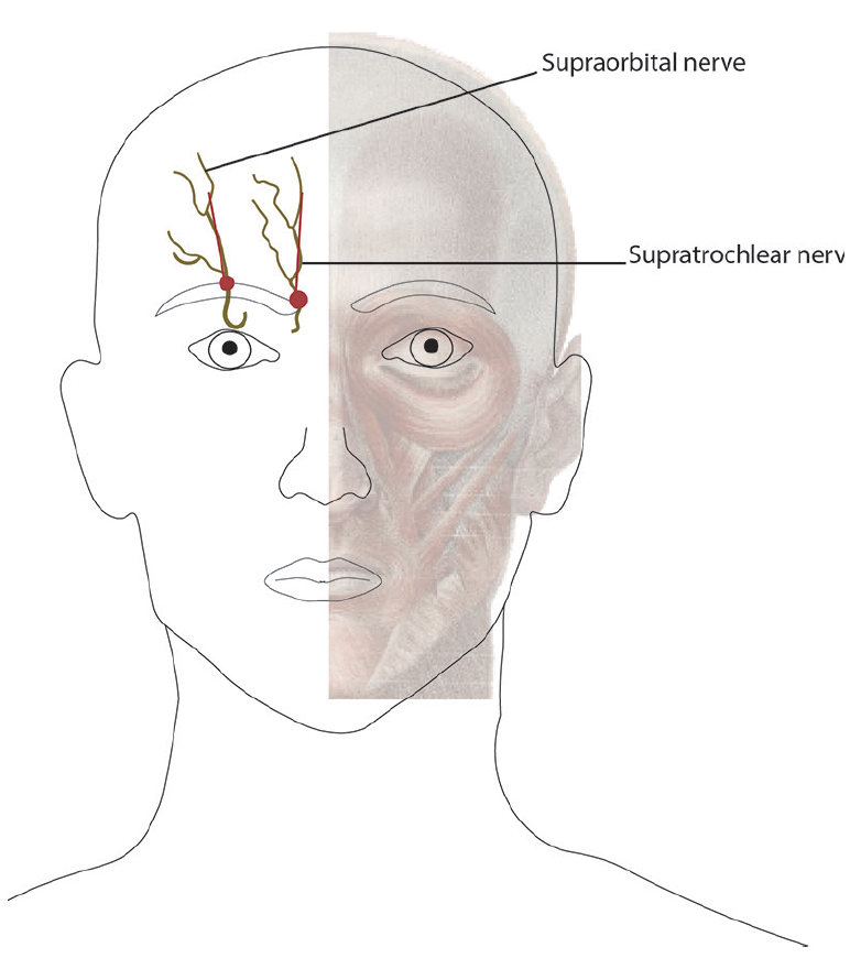 Figure 3. Using direct palpation, the supraorbital foramen is identified and the needle is inserted into the red dots (superomedial corner of the orbit for supratrochlear nerve and the mid-pupillary line for the supraorbital nerve) infiltrating in the areas of supraorbital and supratrochlear nerves and being careful to remain superficial throughout the entire process.
