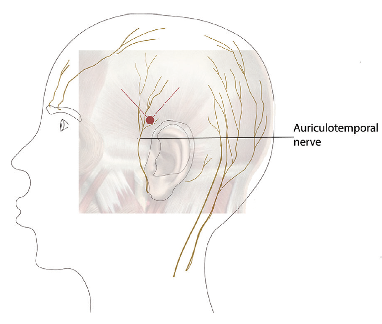 Figure 4. Using direct palpation, the temporal artery pulse is located, and the skin prepared with alcohol. Next, the needle is inserted into the red dot (anterior to the temporal artery above the posterior part of the zygoma) infiltrating in the area of the auriculotemporal nerve and again being careful to remain superficial throughout the entire process.