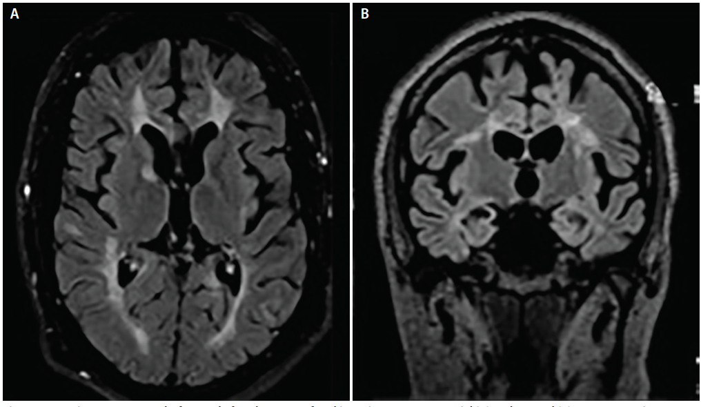 Figure 1. Imaging assessments before and after the onset of parkinsonian symptoms: Axial (A) and coronal (B) T2 FLAIR sections before the onset of hemiparkinsonism.