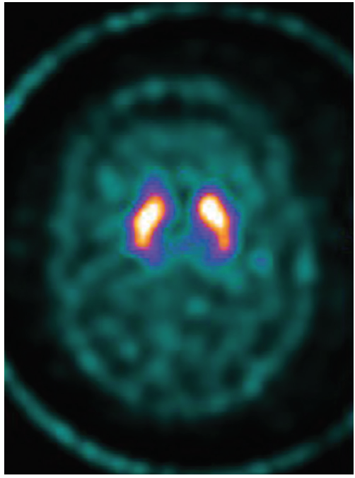 Figure 3. Ioflupane dopamine transporter scan (DaTSCAN). Presynaptic dopamine uptake is preserved on both sides.
