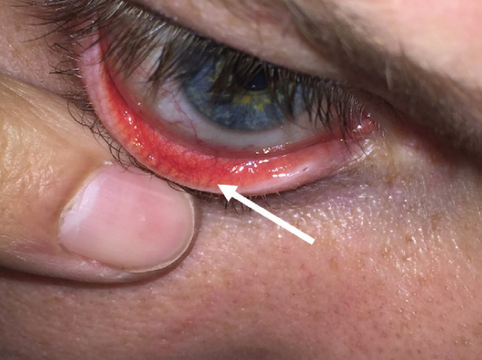 Figure 1. The patient's lower lid is pulled down to view the palpebral conjunctiva. Arrow indicates the meibomian glands.