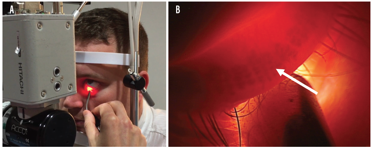 Figure 2. Eyelid transillumination is performed at the slit lamp (A). The view at the slit lamp using this technique; arrow indicates a meibomian gland (B).