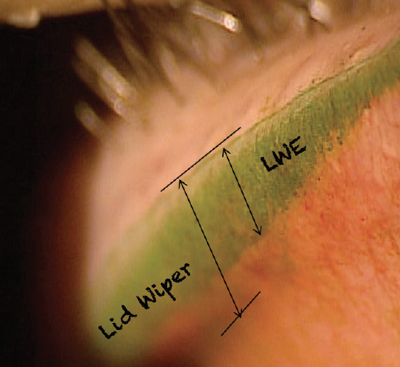 Figure 3. Photo shows the lid wiper area and the presence of lid wiper epitheliopathy.