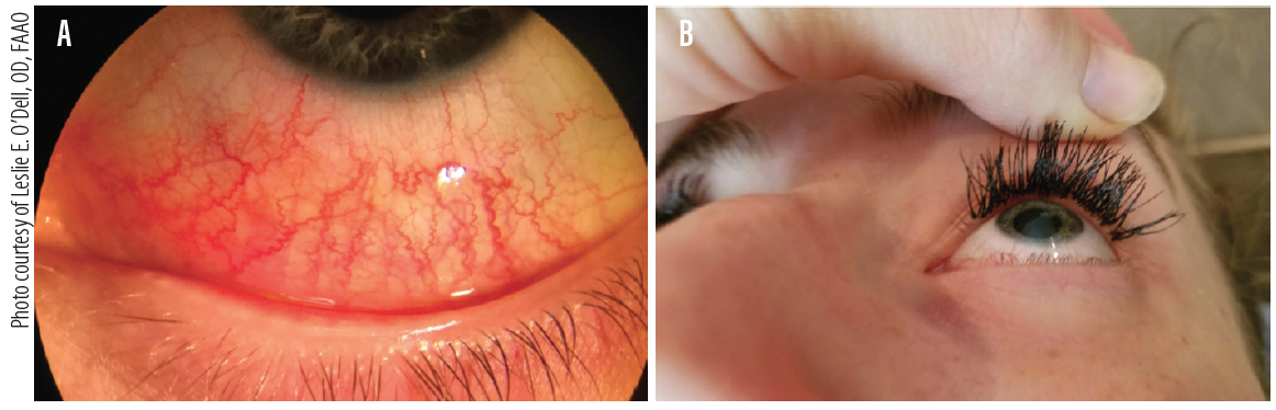 Figure 1. Marked allergic and chemical conjunctivitis (A) after improper application of eyelash extensions applied to superior line of Marx (B) one day prior, blocking meibomian glands. This patient had to have the false lashes removed immediately due to her severe ocular symptoms.