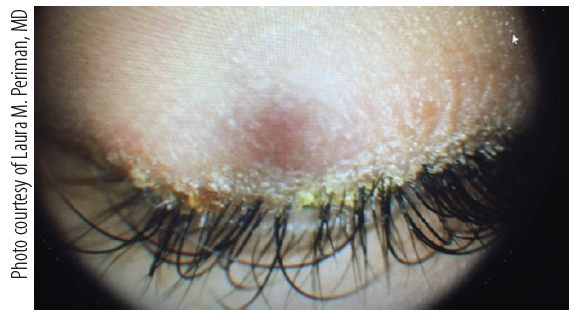 Figure 2. This patient presented with significant blepharitis and complaints of dry eye 2 weeks after application of eyelash extensions. The patient admitted to discontinuing eyelid hygiene to prevent damage to the extensions.