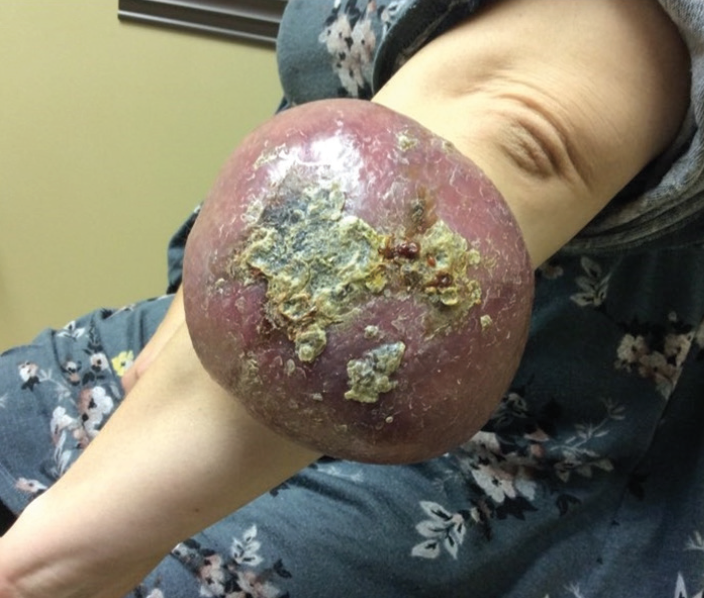 Figure 1. Patient at initial presentation to dermatology office. 27x21.5cm firm non-pulsatile erythematous tumor with overlying crust located on the left ulnar forearm.
