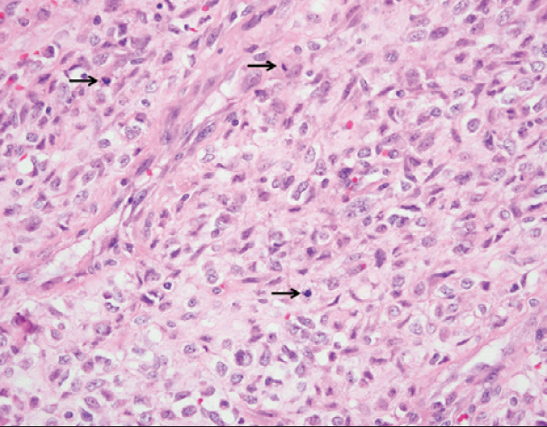 Figure 3. 400x. Fusiform tumor cells have vesicular chromatin and pale eosinophilic cytoplasm. Mitotic figures are apparent (arrows).