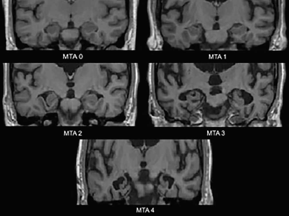 Figure 1. Medial temporal atrophy (MTA) scale ratings. MTA 0—no to minimal gapping of the choroid fissure; MTA 1—subtle widening of the choroid fissure; MTA 2—further widening of the choroid fissure which merges with the temporal horn of the lateral ventricle, mild decrease of the height of the hippocampal formation; MTA 3—moderate decrease of the height of the hippocampal formation, prominent enlargement of the temporal horn of the lateral ventricle; MTA 4—severe decrease of the height of the hippocampal formation, prominent enlargement of the temporal horn of the lateral ventricle.