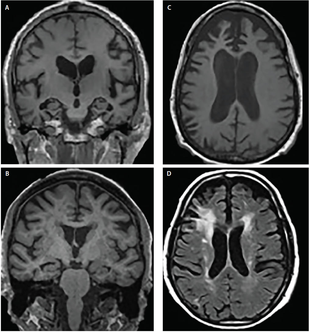 Figure 2. Structural atrophy patterns across Alzheimer's disease (AD) (A), dementia with Lewy bodies (DLB) (B), frontotemporal dementia (FTD) (C) and vascular dementia (VaD) (D). Coronal T1-weighted MRI demonstrates generalized cortical atrophy but differing degrees of hippocampal atrophy in AD (A) and DLB (B). Axial T1-weighted MRI demonstrates bvFTD atrophy with a focal predilection for the medial and lateral prefrontal cortices (C). Axial T2-weighted MRI demonstrates confluent periventricular cap and halo white matter hypointensities (WMHs) involving the corona radiata and extending into the lateral prefrontal neocortex, mild scattered WMHs and WMHs of the subependymal ventricular lining and septum pellucidum in VaD (D).