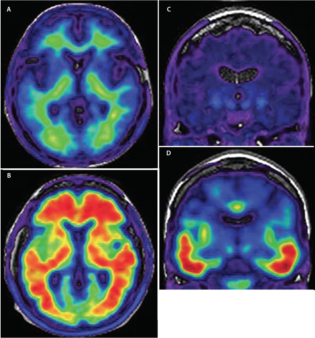 Figure 3. Axial amyloid-PET demonstrating amyloid negative (A) and amyloid positive scans (B). In amyloid negative images (A) the radiotracer signal shows low intensity and is limited to nonspecific white matter binding. The gray/white matter junction is preserved. In amyloid positive images (B) the radiotracer signal is of high intensity and extends diffusely into cortical gray matter regions obscuring the gray/white matter junction. Coronal tau-PET demonstrating tau negative (C) and tau positive (D) scans. In tau negative scans there is minimal, nonspecific low intensity radiotracer signal in the medial temporal, basal forebrain, and basal ganglia regions. In tau-positive scans (D) radiotracer signal is of higher intensity and involves the inferior and lateral temporal cortices following the known trajectory of progression of neurofibrillary tangles.