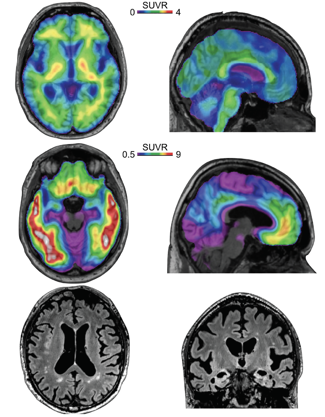 Figure. Amyloid positron emission tomography (PET), tau PET, and MRI from a man, age 80, with mild dementia (CDR 1) after a gradual cognitive decline over 5 years and clinical diagnosis of probable AD. The amyloid PET is read as negative, the tau PET positive on the temporal lobe, precuneus, inferior parietal cortex, orbitofrontal cortex, and amygdala (Braak V). The MRI shows mild general and hippocampal atrophy (Scheltens 4), White matter hyperintensities (WMH) are limited to the periventricular regions (Fazekas 1). This individual has a neurofibrillary tangle predominant dementia.