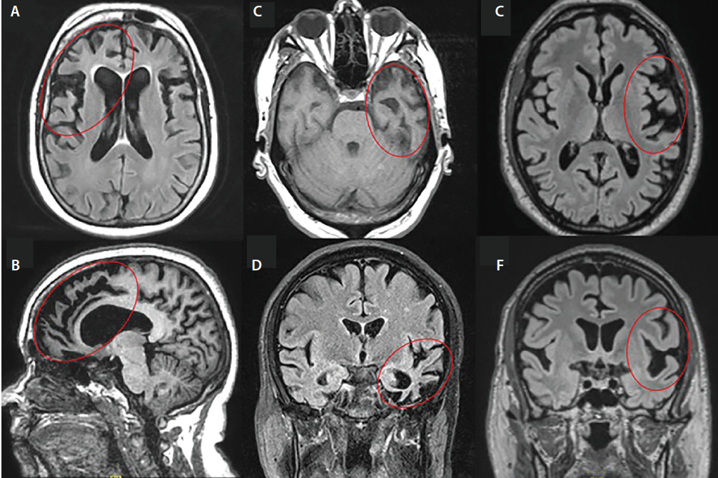 Figure 1. Structural MRI in frontotemporal dementia (FTD) syndromes. Markers enclose areas of focal/lobar atrophy. In behavioral variant FTD (bvFTD), right frontal atrophy is characteristic (A), with relative sparing of posterior structures (B). In semantic variant primary progressive aphasia (svPPA) there is left anterior temporal atrophy (C, D), whereas people with nonfluent agrammatic variant primary progressive aphasia have degeneration in the inferior frontal gyrus and adjacent structures (E, F).