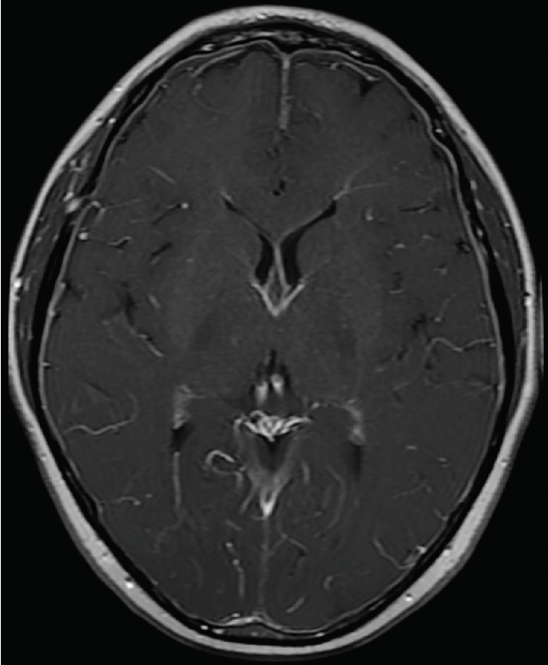 Figure. Brain MRI findings in spontaneous intracranial hypotension.