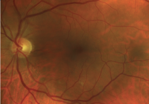 Figure 1. This patient with type 2 diabetes has mild NPDR without macular edema. Note the hemorrhage within the inferior arcades.