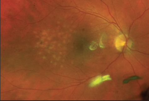 Figure 1. This patient was treated with focal laser photocoagulation in the macula for CSME. Note the faint circular scarring in a grid pattern.