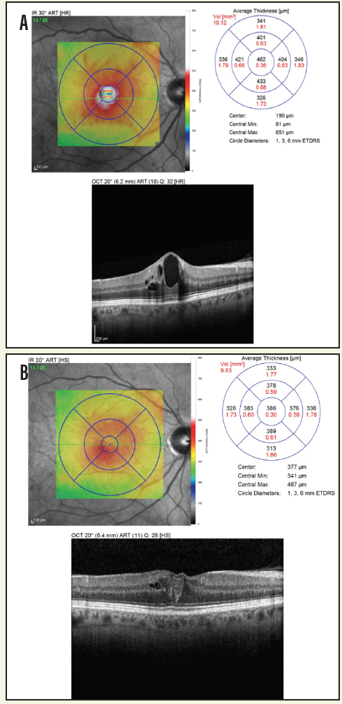 Figure 2. Macular OCT scan of a patient with CSME prior to treatment (A). The same patient shown 1 month after receiving the first anti-VEGF intravitreal injection (B). Note the decrease in macular edema and macular thickening.