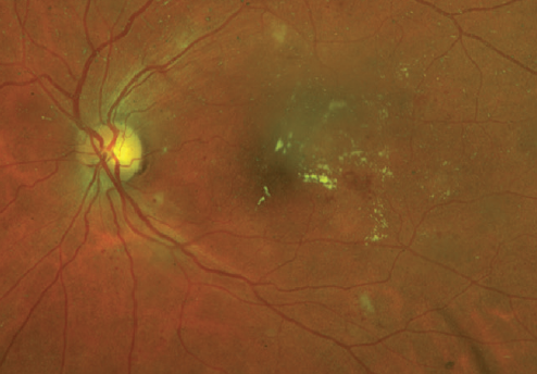 Figure 2. This patient with type 2 diabetes has moderate NPDR and macular edema. Note the MA and hard exudates within the macula and the moderate, scattered dot hemorrhages throughout both the inferior and superior arcades.
