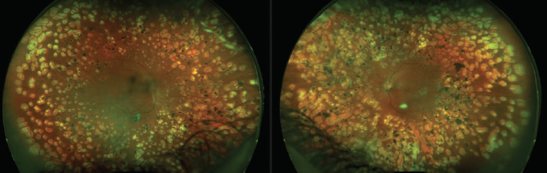 Figure 4. This patient with type 2 diabetes was treated with laser PRP in the periphery for PDR in both eyes.