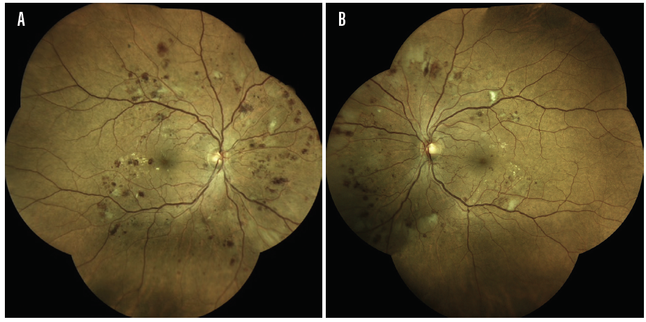 Figure 1. Widefield image demonstrating severe nonproliferative diabetic retinopathy in a patient's right eye (A) and proliferative diabetic retinopathy in a patient's left eye (B).