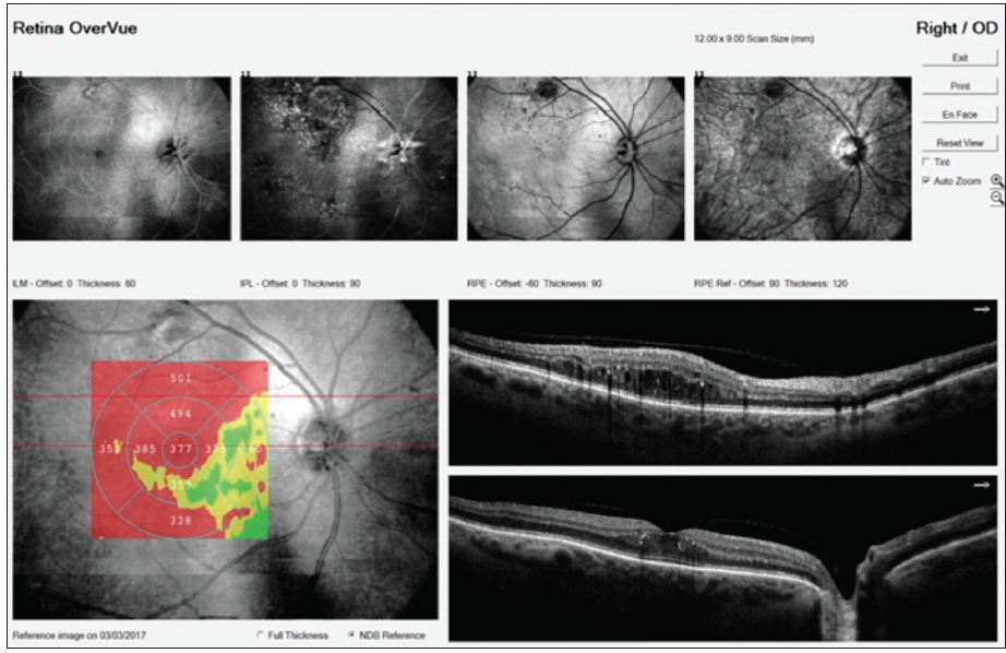 Figure 2. Widefield OCT demonstrating center-involved DME.