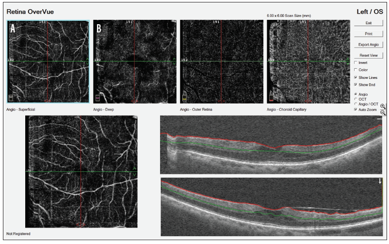 Figure 2. OCTA of the macula of an 82-year-old patient who has had diabetes for more than 30 years. Notice the significant decrease in vessel density in both the superficial (A) and deep (B) capillary layers.