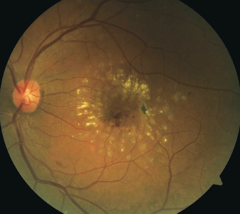 Figure 1. Focal/grid laser therapy in an eye with DME.